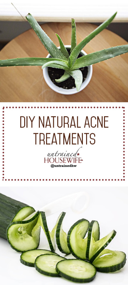 Natural Acne Treatments @UntrainedHW #diy #easy